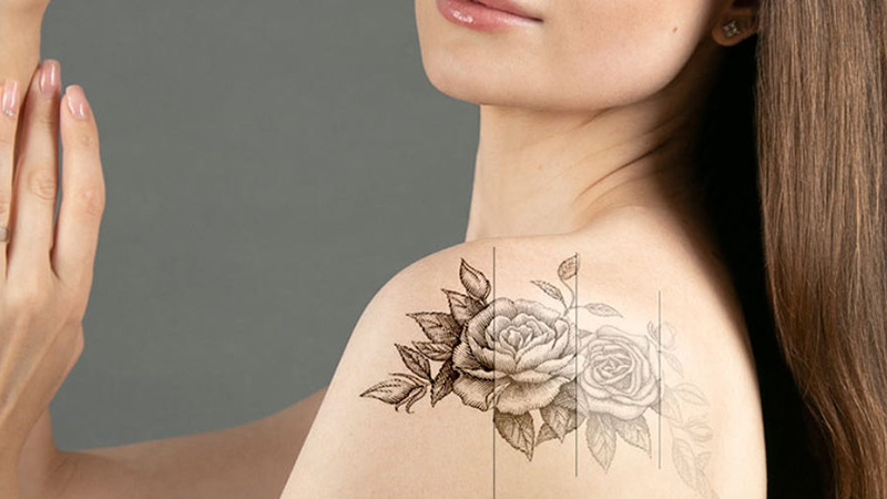 Tattoo Removal - Skin and Teeth Medical Center - Ajman - UAE