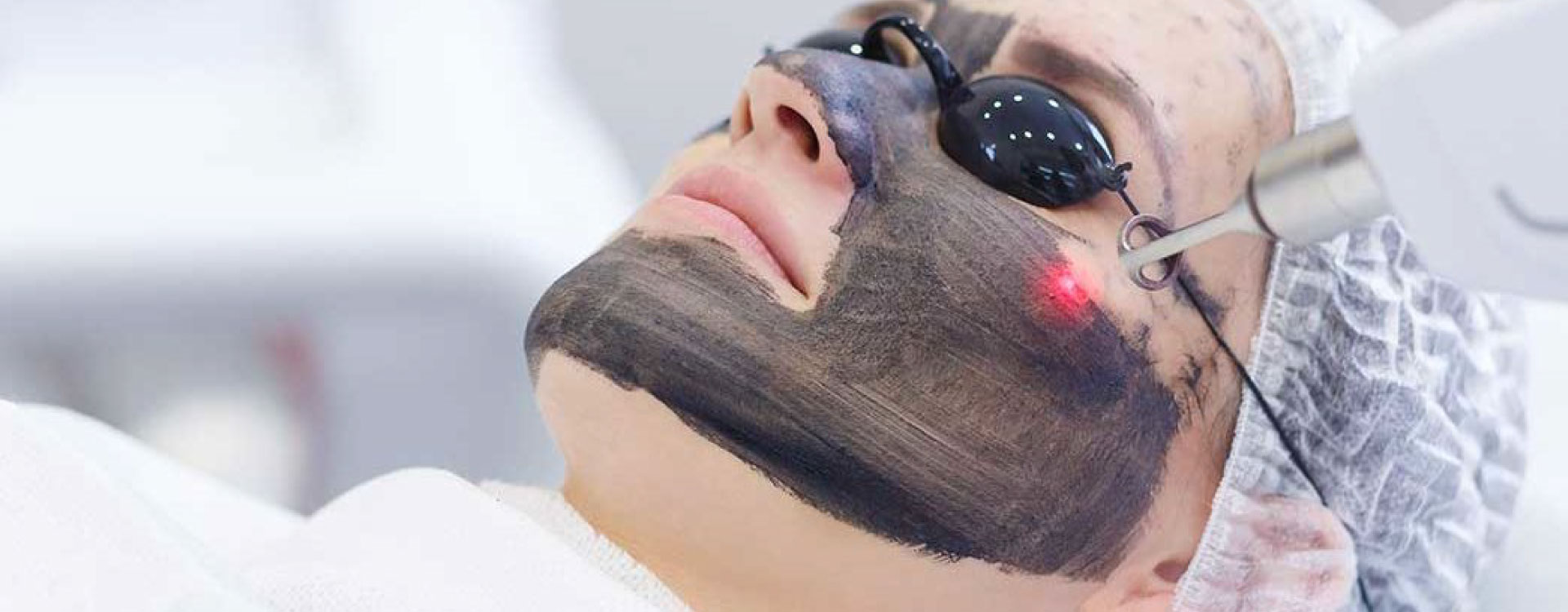 Skin lightening with carbon laser technology - Skin and Teeth Medical Center - Ajman - UAE